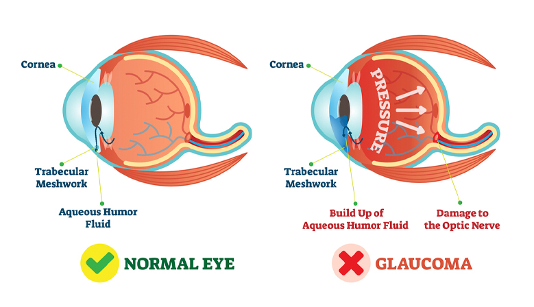 glaucoma treatment, glaucoma treatment springfield MA, glaucoma treatment Western MA, glaucoma treatment longmeadow MA