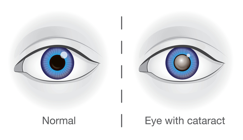 graphic featuring normal eye vs eye clouded by cataract, cataracts, cataract treatment Western MA, cataract surgeon Western MA
